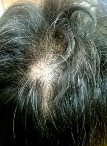 汗をかくと髪が地肌にぺったり